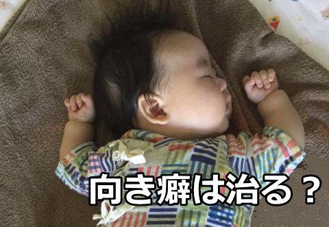 ジェルトロン ベビー枕で向き癖は治る?